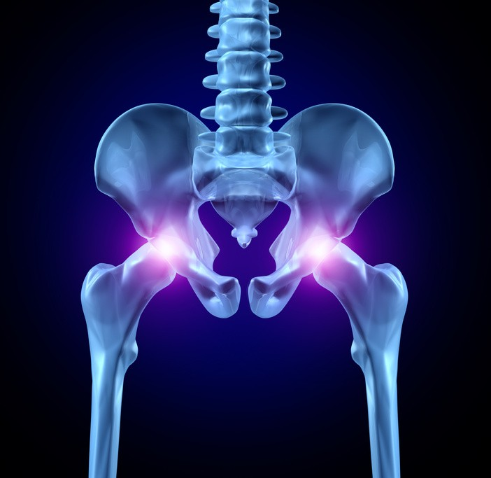 Hip Pain - Impingement ?