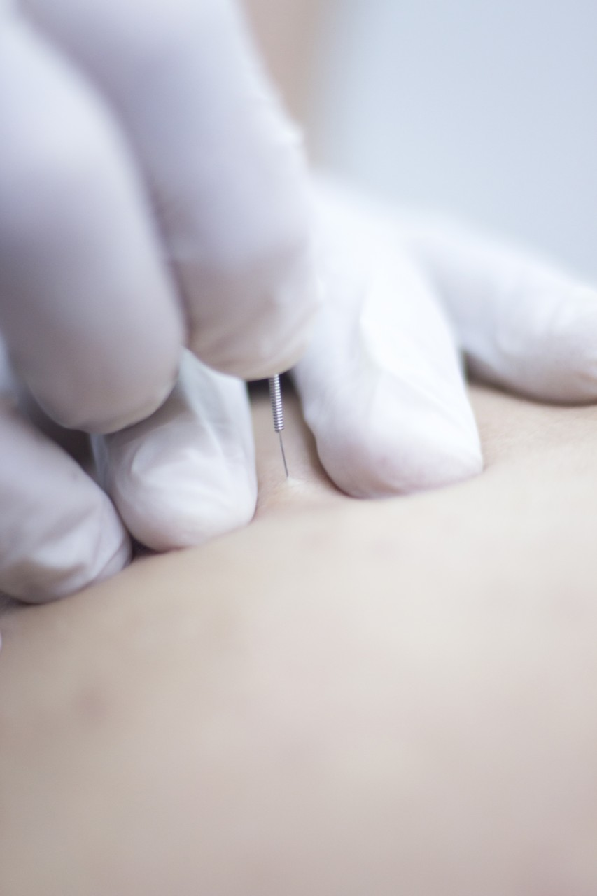 IMS Dry Needling - Frequently Asked Questions - All You Need To Know